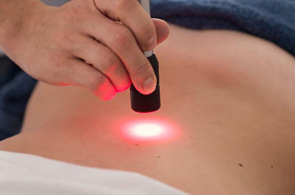 Laser Hilt Therapy